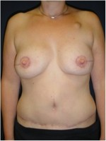 Beidseitiger Brustwiederaufbau mit Unterbauchfettgewebe (DIEP – Lappen)