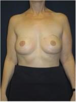 Beidseitiger Brustwiederaufbau durch Unterbauchfett- und Bauchmuskelgewebe (gestielte TRAM-Lappen)