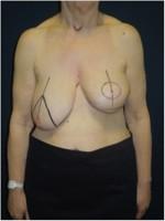 Einzeichnung der Schnittführung vor Korrektur der linken Brust und  angleichender Operation der rechten Brust (3 Monate nach der Bestrahlung)