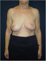 Ergebnis der Korrektur der linken Brust und angleichender Operation der rechten Brust.