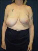 Ergebnis nach brusterhaltender Operation der linken Brust