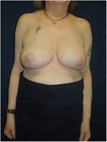 Ergebnis 6 Monate nach  angleichender Brustverkleinerung der rechten Brust