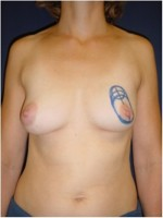 Einzeichnung der Schnittführung vor brusterhaltender Operation der linken Brust