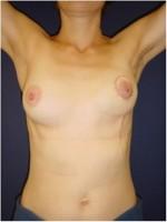 Ergebnis kurz nach brusterhaltender Operation der linken Brust