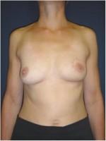 Ergebnis mehrere Monate nach brusterhaltender Operation der linken Brust