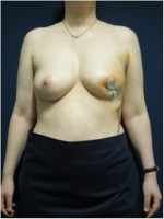 Ergebnis 3 Tage nach brusterhaltender Operation der linken Brust