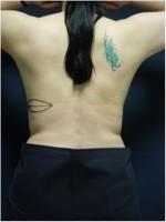 Einzeichnung der Schnittführung für einen Brustwiederaufbau mit Rückengewebe