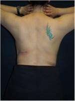 Ergebnis nach Entfernung des Rückengewebes