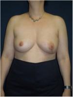 Ergebnis nach Brustwiederaufbau mit Rückengewebe