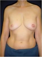 Ergebnis nach Wiederaufbau mit einem Rückenmuskellappen (Latissimus dorsi-Lappen) und zeitversetztem Wiederaufbau von Brustwarze und -vorhof