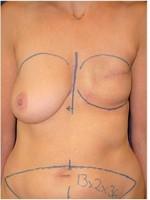 Ergebnis nach  Mastektomie der linken Brust