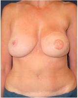 Ergebnis 12 Monate nach Brustwiederaufbau durch Unterbauchfett- und Bauchmuskelgewebe (TRAM-Lappen) und zeitversetztem Wiederaufbau von Brustwarze und -vorhof