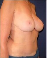 12 Monate nach Brustwiederaufbau durch den Wiederaufbau mit Unterbauchfett- und Bauchmuskelgewebe (TRAM-Lappen) und zeitversetztem Wiederaufbau von Brustwarze und -vorhof