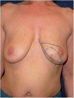 Einzeichnung der Schnittführung vor Mastektomie der linken Brust und sofortigem Wiederaufbau