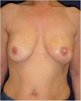 Ergebnis des Brustwiederaufbaus durch die Kombination aus einem Rückenmuskellappen (Latissimus dorsi – Lappen) kombiniert mit einem Implantat  und  einem zeitversetztem Wiederaufbau von Brustwarze und –vorhof (23 Monate nach der Operation)