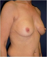 Ergebnis des Brustwiederaufbaus durch die Kombination eines Rückenmuskellappens (Latissimus dorsi – Lappens) mit einem Implanat und zeitversetztem Wiederaufbau von Brustwarze und –vorhof (23 Monate nach der Operation)