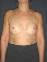 Beidseitiger Brustwiederaufbau durch Implantate